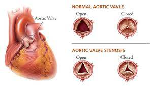 NCLEX Aortic Stenosis Review