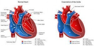 NCLEX Coarctation of the Aorta