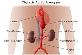 CCRN Aortic Aneurysm Review