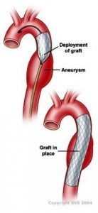 ccrn aortic aneurysm