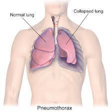 CCRN Pneumothorax Online Review