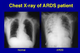 CCRN ARDS Online Review