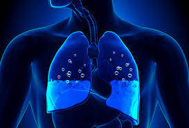 PCCN Practice Questions Pulmonary
