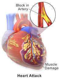 CCRN Myocardial Infarction Review