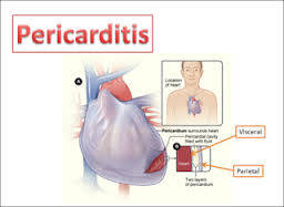 CCRN Pericarditis Review