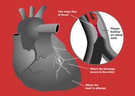 pccn Acute Coronary Syndrome