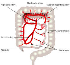 PCCN Ischemic Bowel