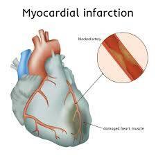 PCCN Myocardial Infarction
