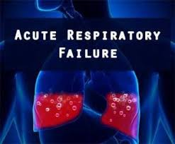 CCRN Acute Respiratory Failure Review